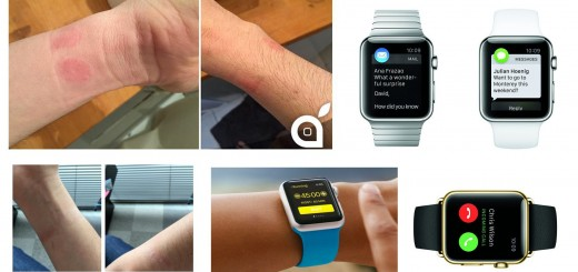 Apple Watch Causes Skin Irritation